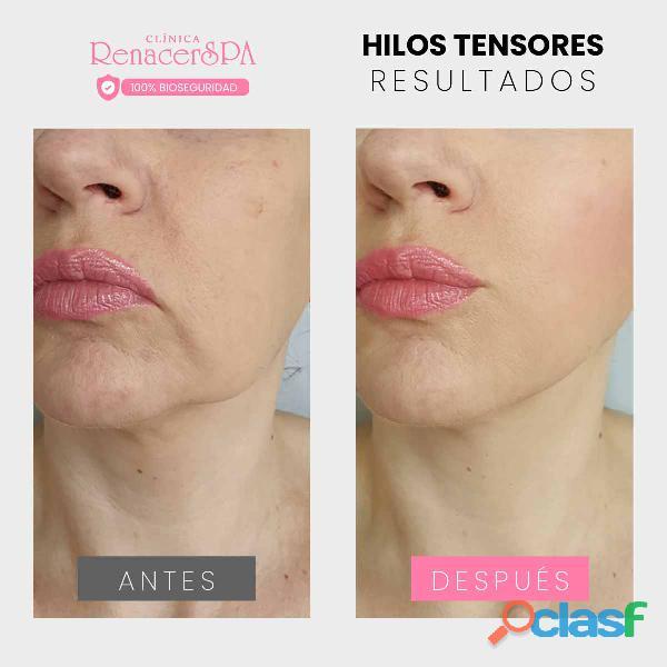 Hilos faciales   medicina estetica 1